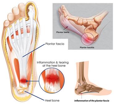 Ezért fájhat a sarka járás közben - EgészségKalauz